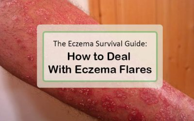The Eczema Survival Guide: How to Deal with Eczema Flares